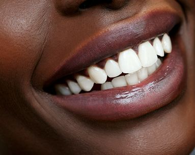 The Differences Between Veneers and Bonding You Probably Didn't Know