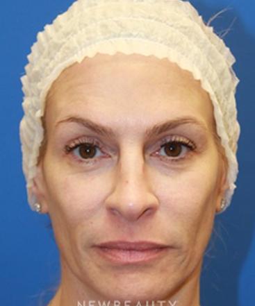 dr-irene-gladstein-botox-b