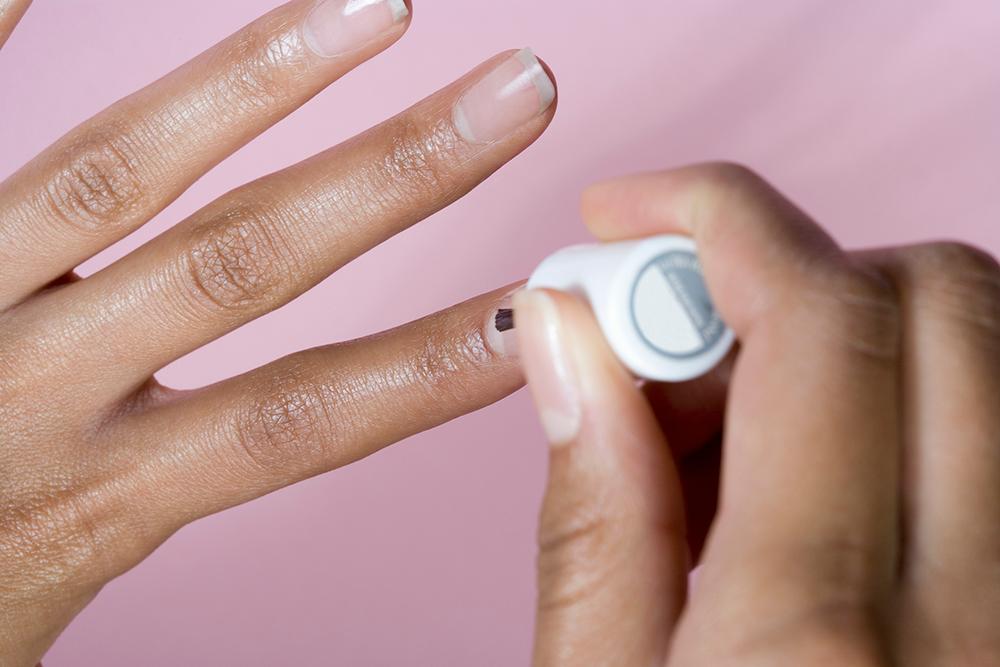 Skin Cancer Under Fingernail - Sun Damage - Skin Care - DailyBeauty ...