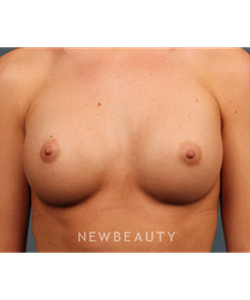 dr-m-bradley-calobrace-breast-augmentation-b