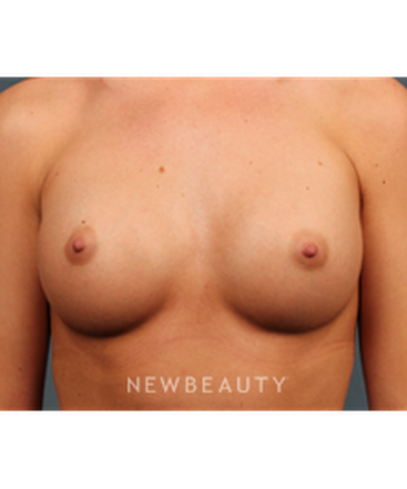 dr-m-bradley-calobrace-breast-augmentation-b