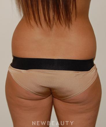dr-david-rapaport-liposuction-b