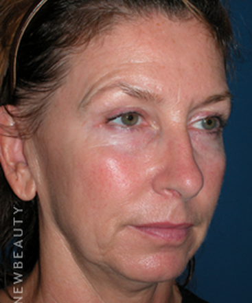 dr-adam-summers-chin-liposuction-smart-facelift-b