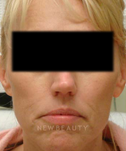 dr-tami-cassis-aesthetic-injectables-sculptra-b