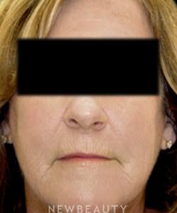 dr-tami-cassis-skin-resurfacing-laser-b