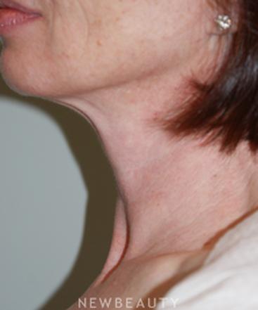 dr-marina-peredo-liposuction-b
