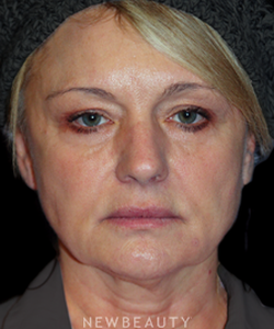 dr-brent-smith-upper-blepharoplasty-necklift-b