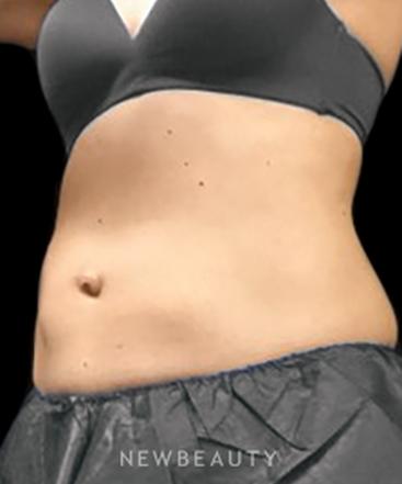 dr-ingrid-warmuth-a-new-waistline-b
