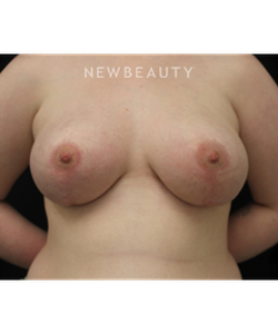 dr-stafford-broumand-breast-reduction-b