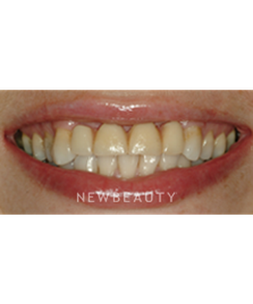 dr-niloufer-hamsayeh-smile-makeover-veneers-b