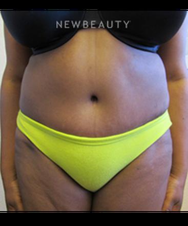 dr-jennifer-e-boll-tummy-tuck-with-liposuction-b
