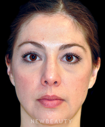 dr-rhonda-rand-injectables-fillers-b