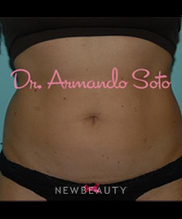 dr-armando-soto-tummy-tuck-b