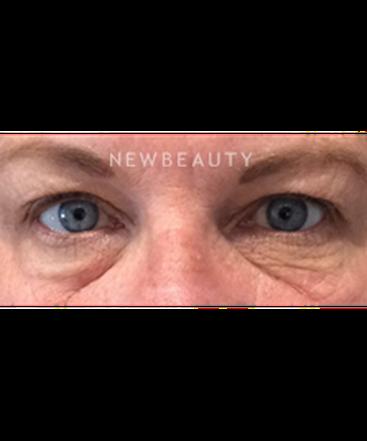 dr-kim-nichols-eye-rejuvenation-b