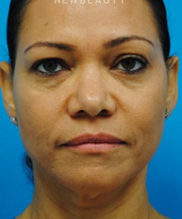 dr-shwetambara-parakh-eyelift-b