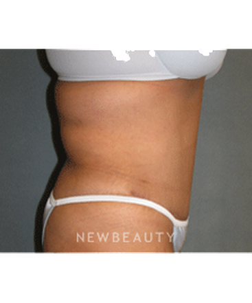 dr-sean-simon-tummy-tuck-lipo-b