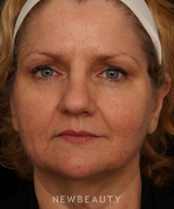 dr-jennifer-m-segal-facial-rejuvenation-b