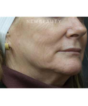 dr-jody-levine-injectables-and-fillers-b