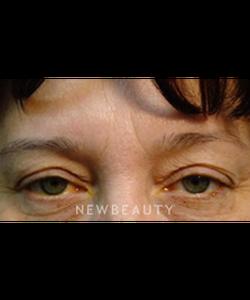 dr-baljeet-purewal-upper-blepharoplasty-b
