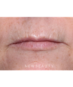 la-jolla-cosmetic-surgery-lip-lift-b