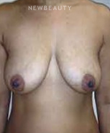 dr-b-aviva-preminger-breast-lift-b