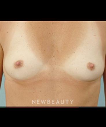 dr-german-newall-breast-augmentation-b