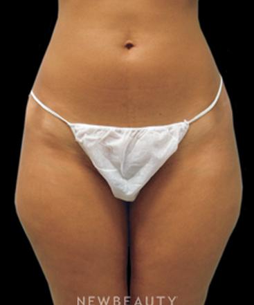 dr-linda-swanson-laser-liposuction-b