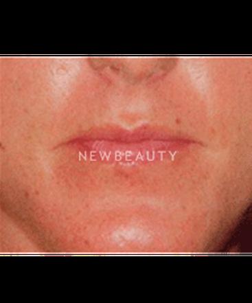 dr-christine-hamori-lip-augmentation-b