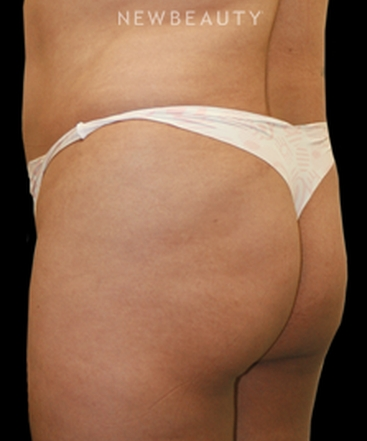 dr-arthur-y-yu-a-more-prominent-posterior-b