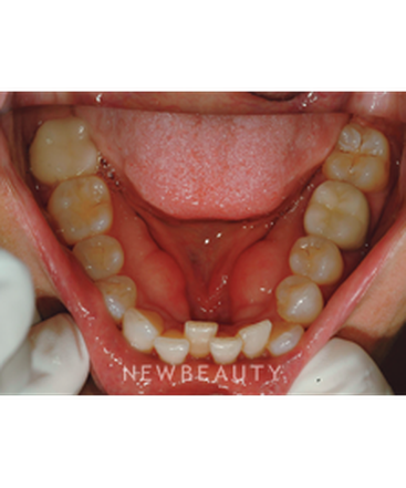 dr-nilfour-hamsayeh-smile-makeover-invisalign-b