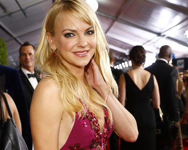 Anna Faris Reveals All the Plastic Surgery She's Had in Her New Book