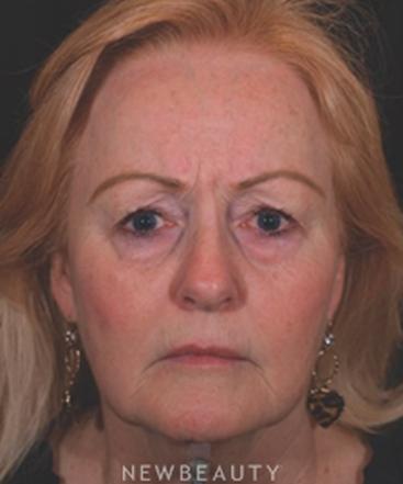 dr-kathleen-behr-facial-rejuvenation-b