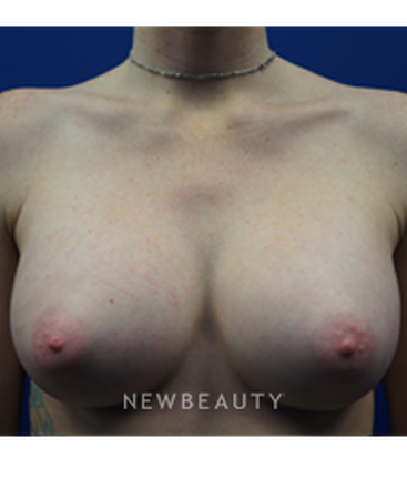 dr-kevin-tehrani-breast-augmentation-breast-implants-b