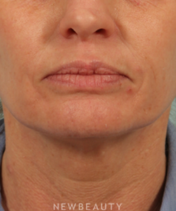 dr-kenneth-beer-injectables-fillers-juvederm-b