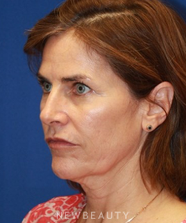 dr-dilip-madnani-facelift-b