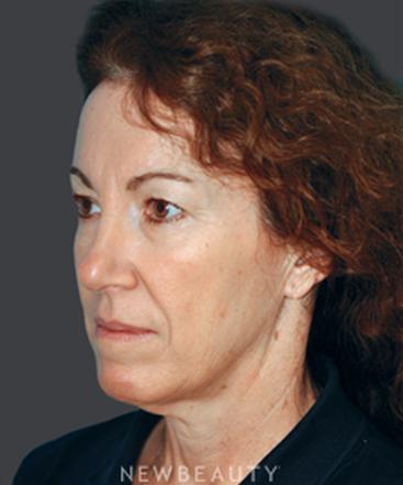 dr-jessica-kulak-eyelift-facelift-lip-implant-b