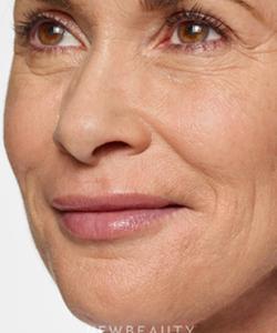 dr-marina-peredo-lip-enhancement-b