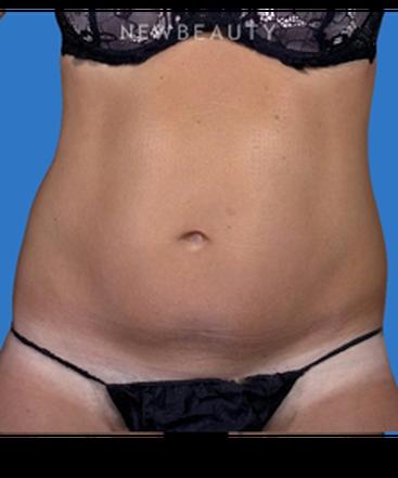 dr-cynthia-poulos-enhanced-results-b