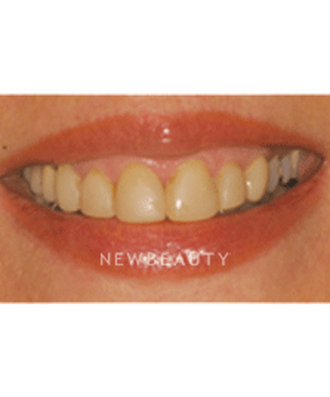 washington-dentistry-crownsgum-contouringveneers-b