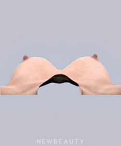 dr-bradley-bengtson-vectra-3d-imaging-b