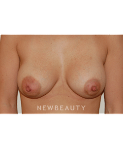 dr-david-rapaport-breast-augmentation-b