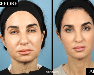 The Nonsurgical Procedure That Gave This 52-Year-Old Woman the Look of a Full Facelift