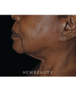 dr-lee-ann-klausner-ulthera-skin-tightener-b