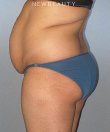 dr-german-newall-slimmer-profile-b