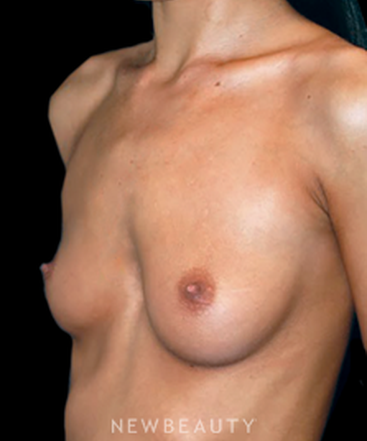 dr-roman-rayham-breast-augmentation-b