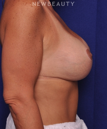 dr-alan-j-durkin-breast-augmentation-b
