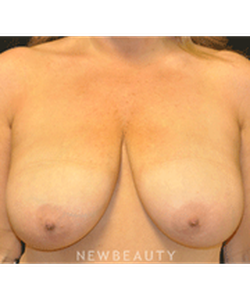 dr-andrew-smith-breast-reduction-b