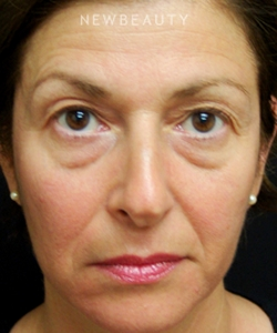 dr-mokhtar-asaadi-blepharoplasties-b