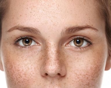 Match.com Sorry for Offending Everyone With Freckles