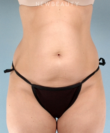dr-henry-mentz-liposuction-b
